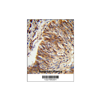 ALDH3B1 antibody - center region (OAAB05302) in human lung carcinoma cells using Immunohistochemistry