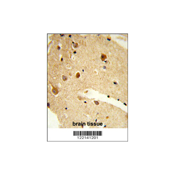 CNDP1 antibody - C-terminal region (OAAB05757) in human brain cells using Immunohistochemistry