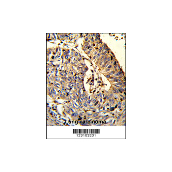 C21orf29 antibody - center region (OAAB05867) in human lung carcinoma cells using Immunohistochemistry