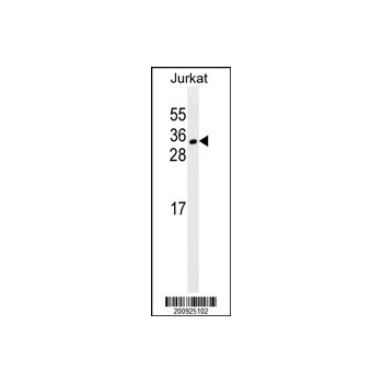 CDCA8 antibody (Ascites) (OAAB06742) in Jurkat cells using Western Blot
