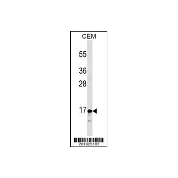 CALCA/CT antibody (OAAB06979) in CEM cells using Western Blot