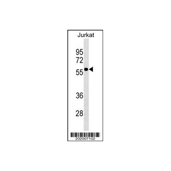 CD1A antibody (Ascites) (OAAB07014) in Jurkat cells using Western Blot