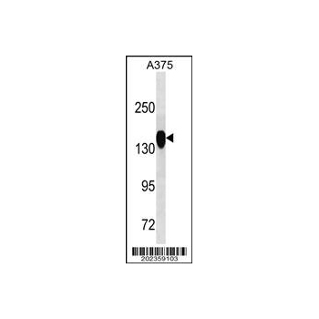 ANPEP antibody (OAAB07046) in A375 cells using Western Blot