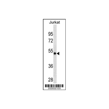 ARSA antibody - C - terminal region (OAAB07079) in Jurkat cells using Western Blot