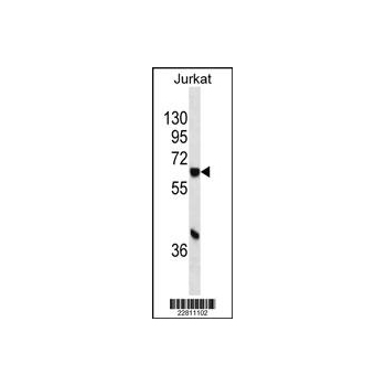 CYP1A1 antibody - C - terminal region (OAAB07186) in Jurkat cells using Western Blot