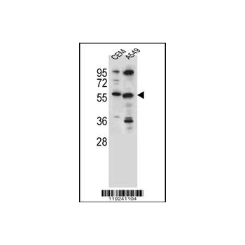 CSAD antibody - center region (OAAB08026) in CEM, A549 cells using Western Blot