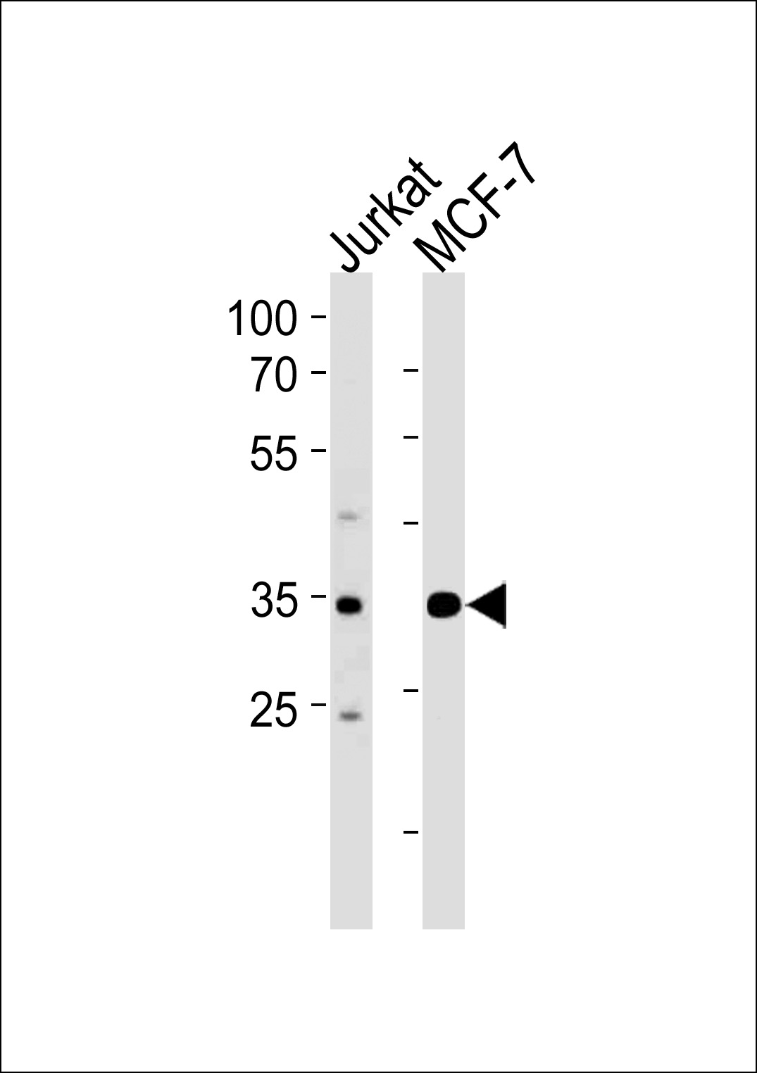 ATF4 antibody - center region (OAAB08493) in MDA-MB435 cells using Western Blot