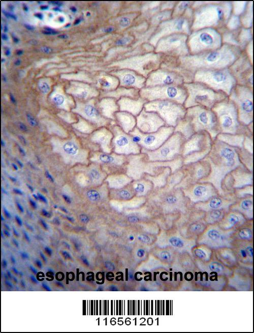 CDCA8 antibody - N - terminal region (OAAB09041) in Human esophagus cells using Immunohistochemistry