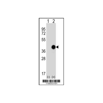 CTSK antibody (center region (OAAB09175) in 293 cells using Western Blot