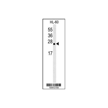 Bcl - w antibody (BH3 Domain Specific) (OAAB09352) in HL-60 cells using Western Blot