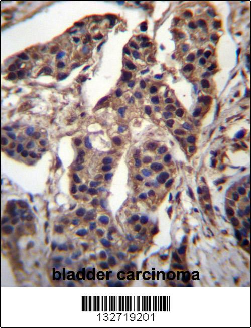 CG025 antibody - N - terminal region (OAAB09466) in Human bladder cells using Immunohistochemistry