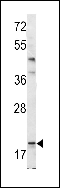Bad BH3 Domain antibody (OAAB09536) in Mouse Bladder cells using Western Blot