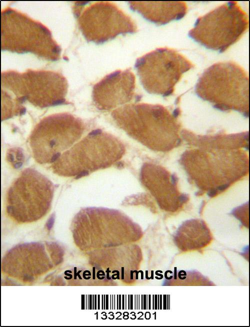 CDKN1B antibody - C - terminal region (OAAB09609) in Human Skeletal Muscle cells using Immunohistochemistry