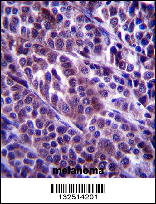 ARMC9 antibody - N - terminal region (OAAB09737) in Human Melanoma cells using Immunohistochemistry