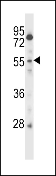 CSRNP2 antibody - C - terminal region (OAAB09771) in CEM cells using Western Blot