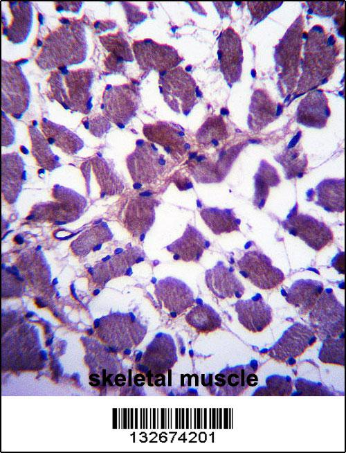 HSPA12B antibody - N - terminal region (OAAB09880) in Human skeletal muscle cells using Immunohistochemistry