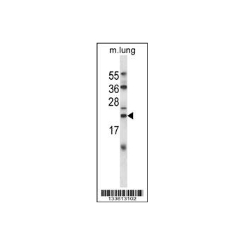 CRYAB antibody - center region (OAAB09997) in Mouse Lung cells using Western Blot