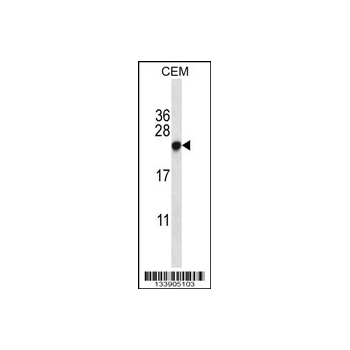 CBX5 antibody - center region (OAAB10078) in CEM cells using Western Blot