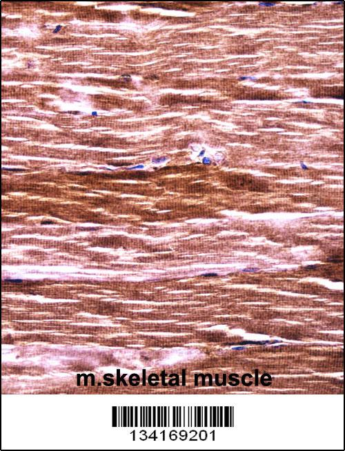 Mouse Akt2 antibody - N - terminal region (OAAB10204) in Mouse skeletal muscle cells using Immunohistochemistry