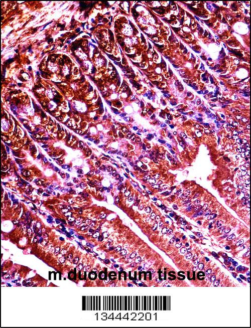 Mouse Abl1 antibody - center region (OAAB10205) in Mouse duodenum cells using Immunohistochemistry