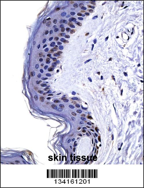 CSRP2 antibody - center region (OAAB10366) in Human Skin cells using Immunohistochemistry