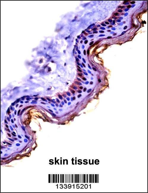 CSTA antibody - C - terminal region (OAAB10648) in Human Skin cells using Immunohistochemistry