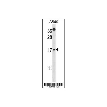 CSTA antibody - C - terminal region (OAAB10648) in A549 cells using Western Blot