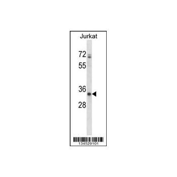 ART3 antibody - C - terminal region (OAAB10884) in Jurkat cells using Western Blot