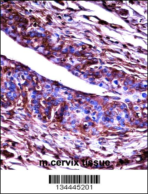 Mouse Adrbk2 antibody - C - terminal region (OAAB11148) in Mouse cervix cells using Immunohistochemistry