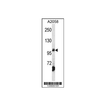 AP2B1 antibody - center region (OAAB11293) in A2058 cells using Western Blot