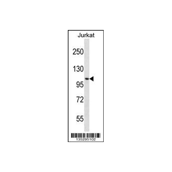 CENPC1 antibody - center region (OAAB11648) in Jurkat cells using Western Blot