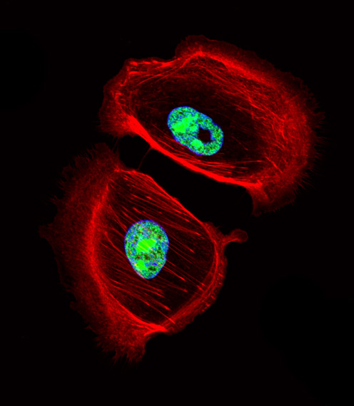 ARNT2 antibody - center region (OAAB11962) in SK-BR-3 cells using Immunofluorescence
