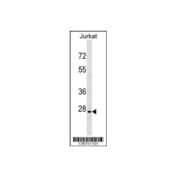 ANP32B antibody - N - terminal region (OAAB12419) in Jurkat cells using Western Blot