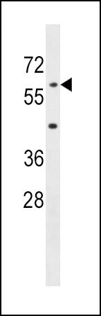 AOAH antibody - center region (OAAB12756) in Mouse Liver cells using Western Blot