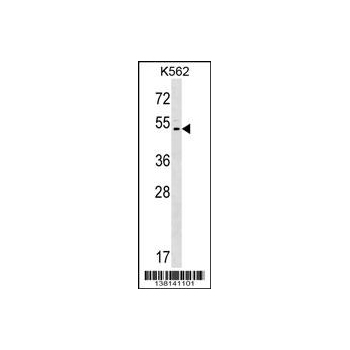 ACCN5 antibody - C - terminal region (OAAB13380) in K562 cells using Western Blot