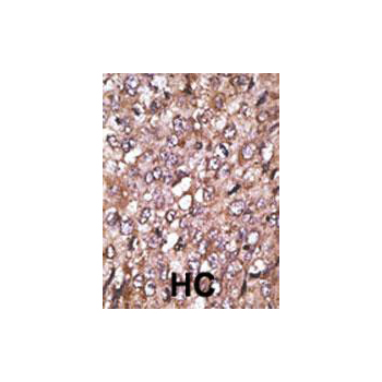 ATG4A antibody (OAAB13543) in Human cancer, breast carcinoma, hepatocarcinoma cells using Immunohistochemistry
