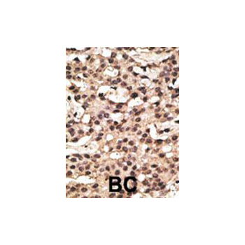 ATG9A antibody - center region (OAAB13636) in Human cancer, breast carcinoma, hepatocarcinoma cells using Immunohistochemistry
