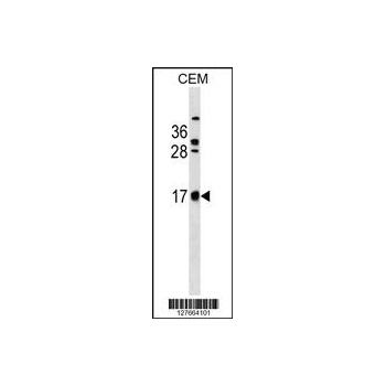 CB083 antibody - C - terminal region (OAAB13862) in CEM cells using Western Blot