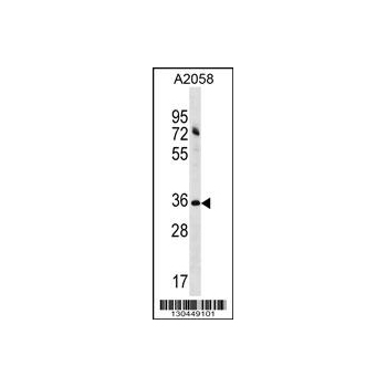 ACBD6 antibody - N - terminal region (OAAB14162) in A2058 cells using Western Blot