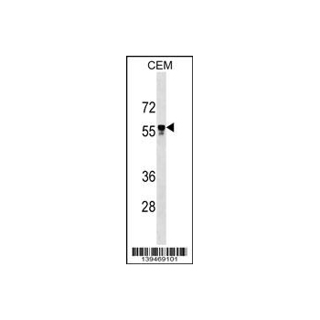 API5 antibody - C - terminal region (OAAB14363) in CEM cells using Western Blot