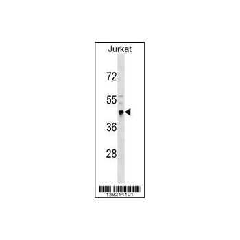 CRELD2 antibody - N - terminal region (OAAB14519) in Jurkat cells using Western Blot