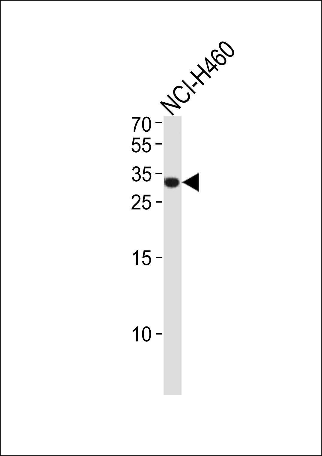 ASCL1 antibody - N - terminal region (OAAB15232) in 293 cells using Western Blot