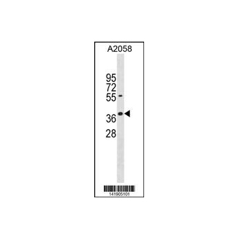 AVEN antibody - N - terminal region (OAAB15395) in A2058 cells using Western Blot