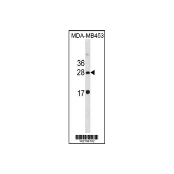 CLDN14 antibody - C - terminal region (OAAB15442) in MDA-MB453 cells using Western Blot