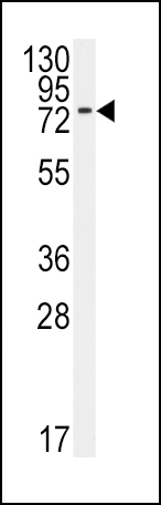 BMPR1A antibody (N - terminal region (OAAB15455) in 293 cells using Western Blot