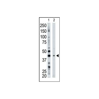 ART3 antibody - N - terminal region (OAAB15850) in Mouse Brain cells using Western Blot