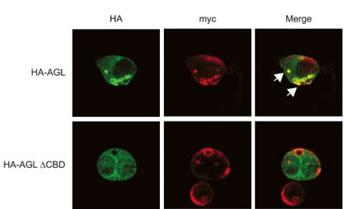 AGL antibody - C - terminal region (OAAB15869) in HA-tagged, HepG2, MYC, wild-type cells using Immunofluorescence