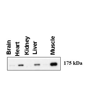 AGL antibody - C - terminal region (OAAB15869) in Total cells using Western Blot