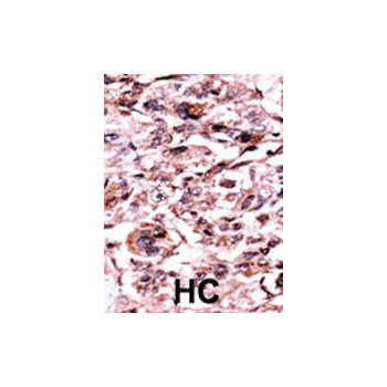 Phospho - ABL1 - Y245 antibody (OAAB15990) in Human cancer, breast carcinoma, hepatocarcinoma cells using Immunohistochemistry
