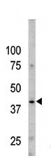 Phospho - Caspase 9 - S196 antibody (OAAB16012) in Y79 cells using Western Blot